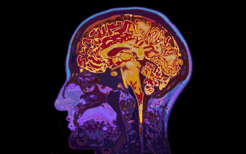 How A Traumatic Brain Injury Can Lead To Fibromyalgia
