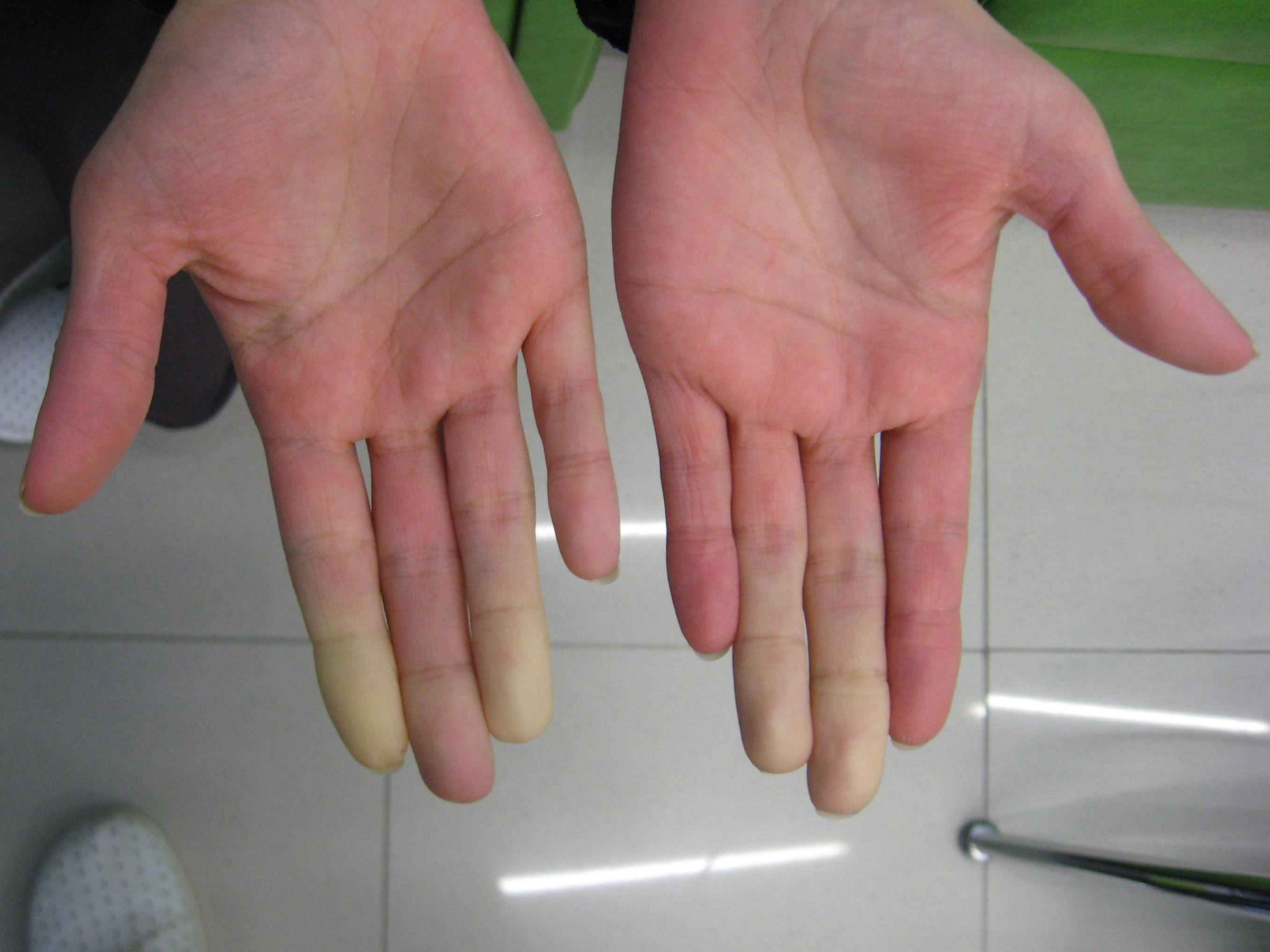 Raynaud's Syndrome and Fibromyalgia