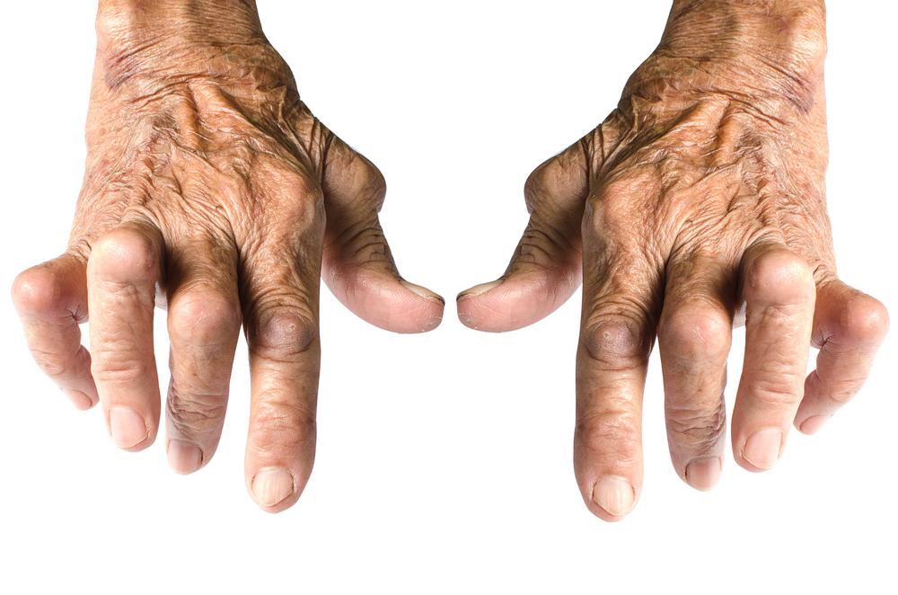 Osteoarthritis is the Most Common Form of Arthritis