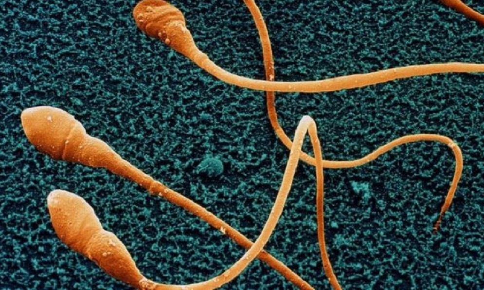 Researchers warn declining sperm counts could doom human race