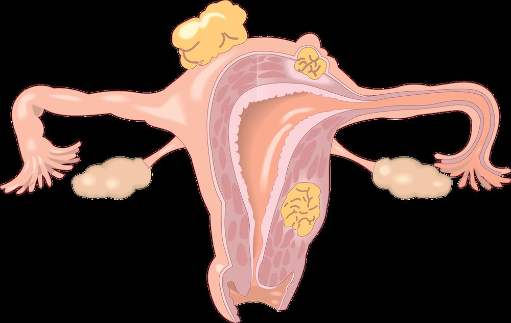 Premature Ovarian Failure (POF) and Autoimmunity