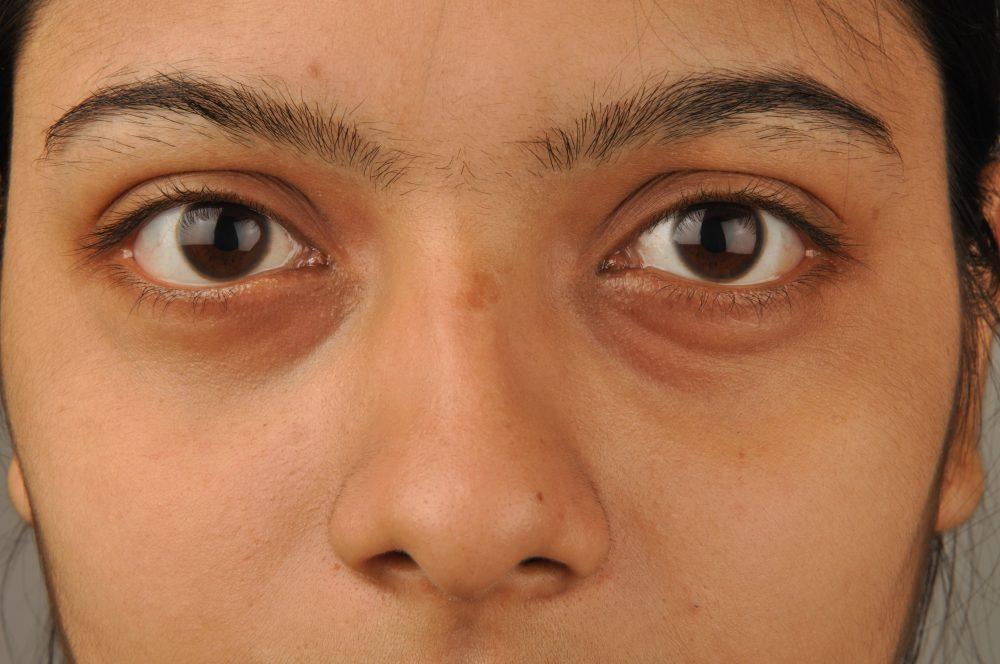 How to Treat Dark Circles Under the Eyes