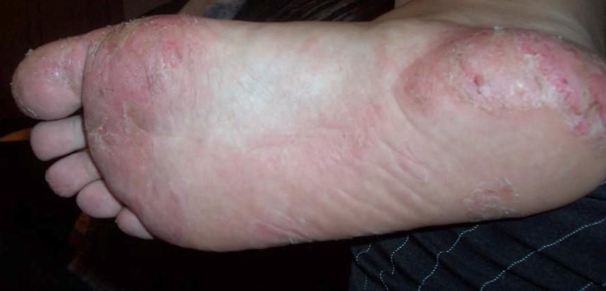 Dyshidrotic Eczema and Fibromyalgia