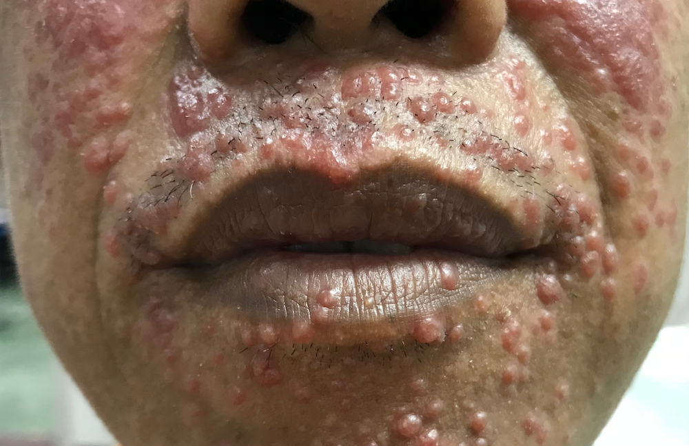 HIV Rash: What to Watch for