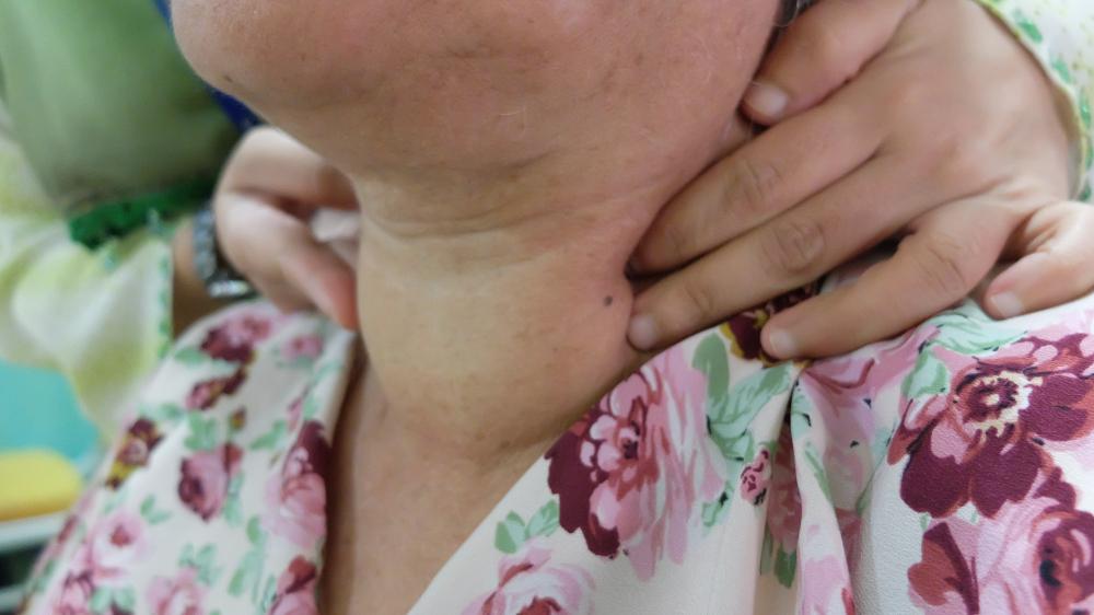 ICD 9 Code Hypothyroidism