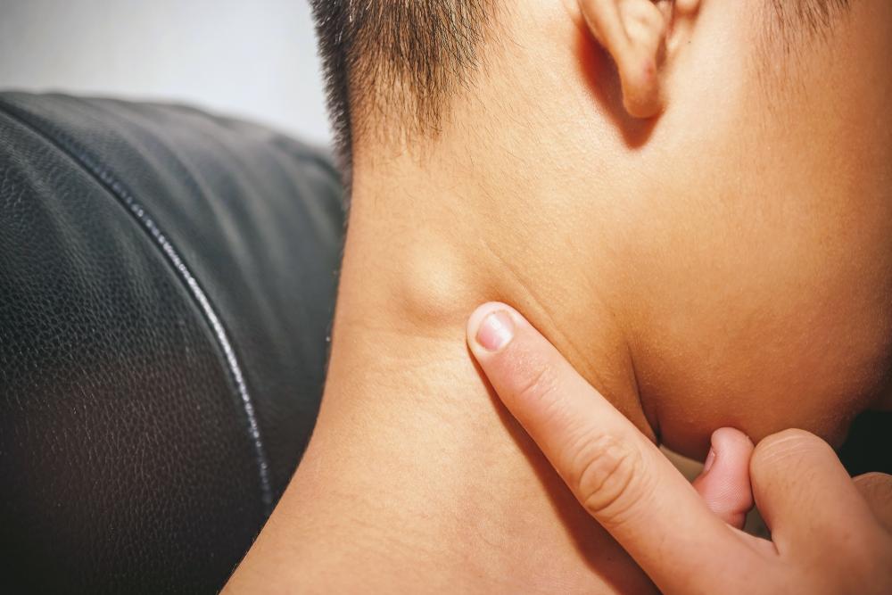 Does Hiv Cause Swollen Lymph Nodes Redorbit