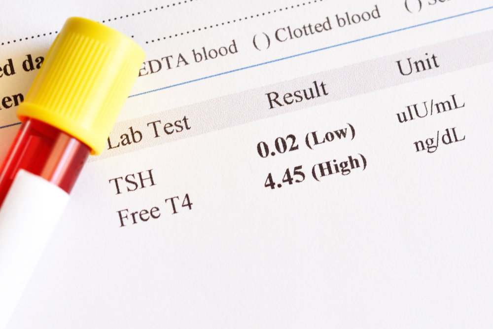 Can You Self-Test For Hypothyroidism?