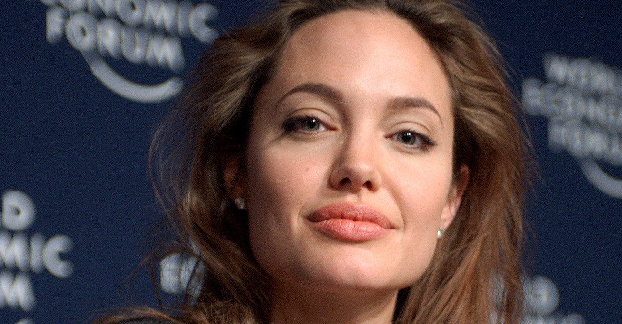 The Case of Angelina Jolie: Double Mastectomy and Breast Cancer Prevention