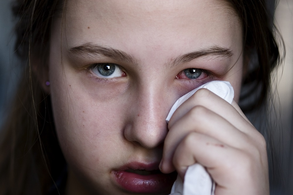 Home Remedies for Pink Eye – The Do's and Don'ts of Conjunctivitis