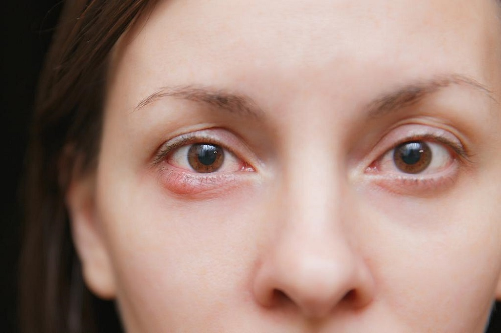 How to Get Rid of a Stye at Home