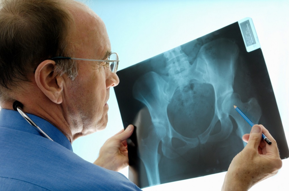 How Long Does Hip Replacement Surgery Last and What Can You Expect?