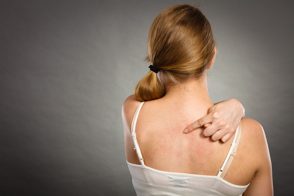 On Your Way to Clear and Healthy Skin: How to Get Rid of Eczema